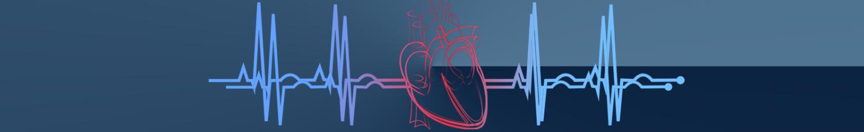 EKG-line